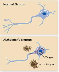 Alzheimer's Disease - FK Wiki
