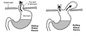 the gallery for gt rolling hiatal hernia